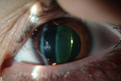 I've been told that I have mild cataract, what should I do?