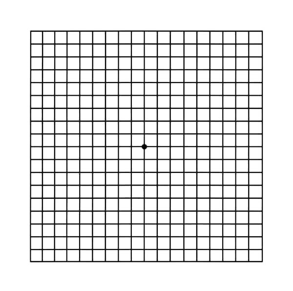 An Amsler-grid is used to detect visual distortions that may signify macular diseases such as age-related macular degeneration