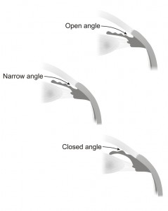 Angle-open narrow Closed