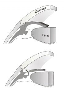 Angle closure and PI