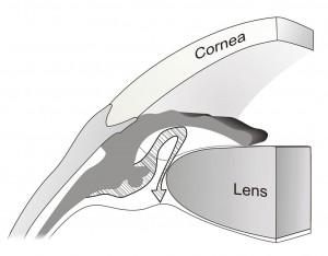 Angle closure illustrated