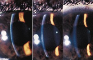 steroid induced glaucoma causes