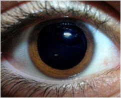 Why are Pupils Dilated During an Eye Exam
