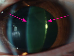 How Does One Manage With a Cataract